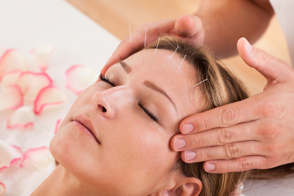 Femme en séance d'acupuncture